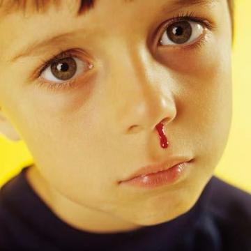 Les saignements de nez sont impressionnants, mais la plupart du temps bénins.